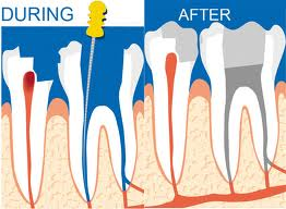 RootCanal_3