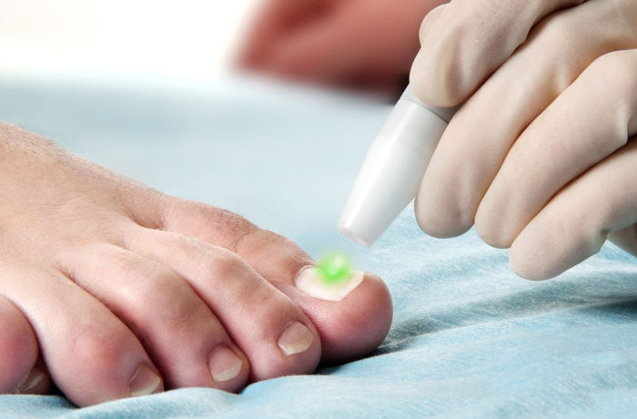 ToeNail Laser Fungal Treatments