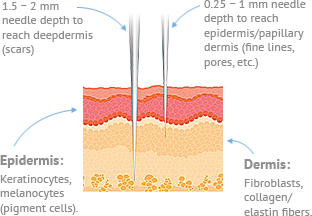 Micro-Needling or Collagen induction therapy